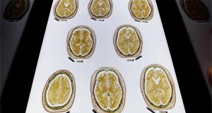 مشاهدة المواد الإباحية تقلص حجم الدماغ