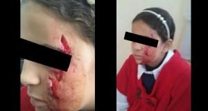 """اعتداء خطير على طفلة بمدرسة """"رابعة العدوية"""""""