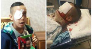إصابات بشعة لضحايا الأسلاك الشائكة في طنجة