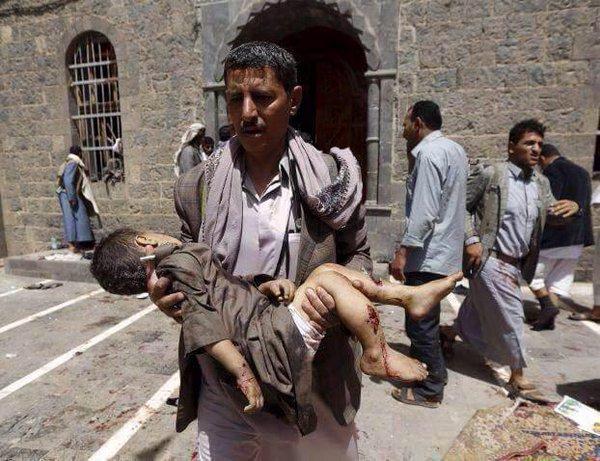 تقرير أممي يتهم التحالف السعودي بقتل مئات الأطفال في اليمن