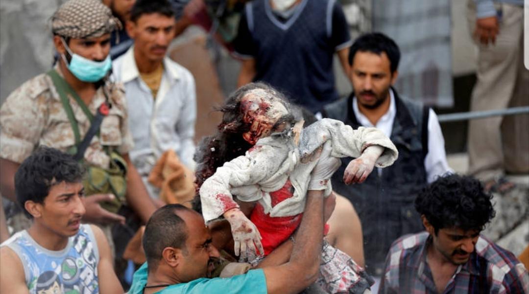 السعودية تقصف حفل زفاف في اليمن وتوقع 12 قتيلا بينهم 3 أطفال