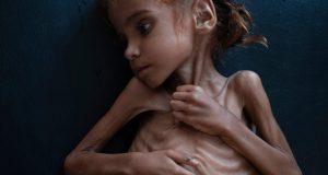الطفلة اليمنية التي قتلها السعوديون جوعا.. وأبكت العالم..