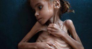 ترامب متواطئ مع السعودية والإمارات لتدمير وتجويع اليمن