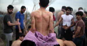 اليونانيون يعذبون اللاجئين ويعيدونهم عراة إلى تركيا